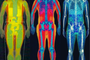 Why is there a difference in DEXA Scan results depending on the manufacturer?